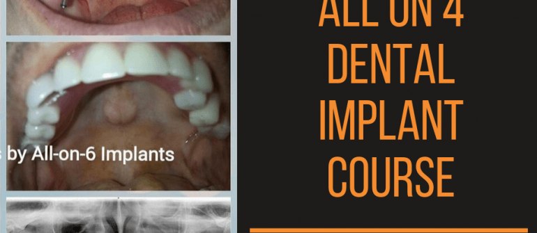 All on 4 Dental Implant Training Course, Hands On, Live Surgery in Ahmedabad Gujarat India